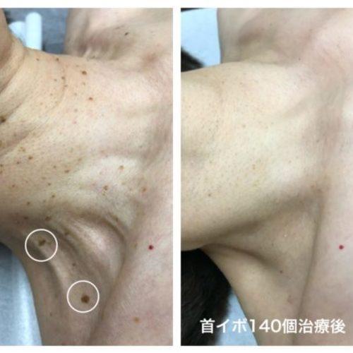 【東京浜松町院】adebクリニック Dr.satokoのイボ治療予約枠(6月まで)
