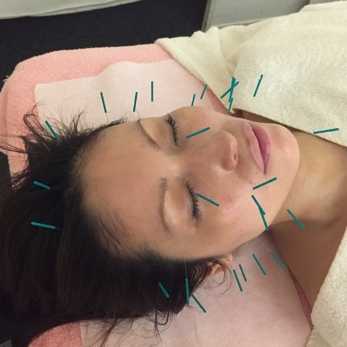 Akyuria acupuncture clinic