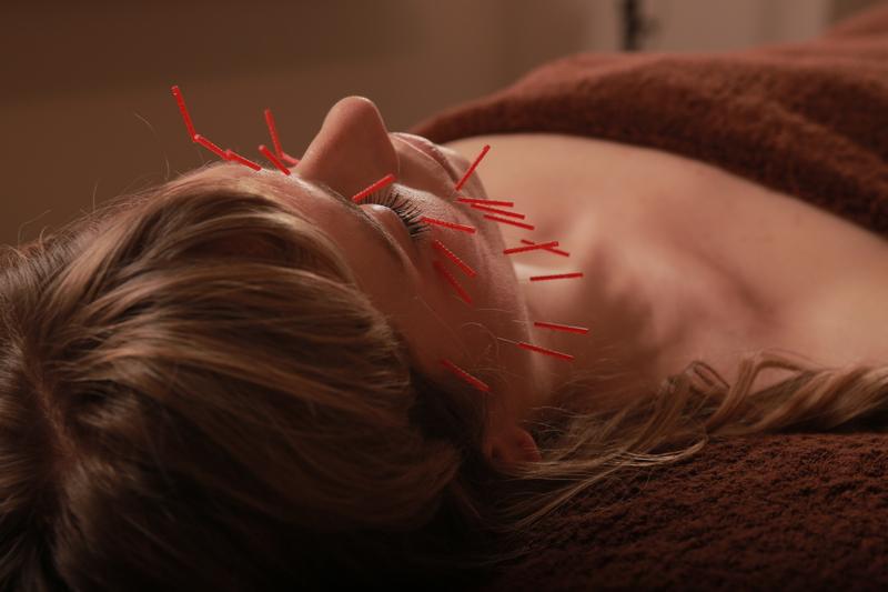 鍼灸・美容鍼灸、デコルテ、デトックスマッサージの予約