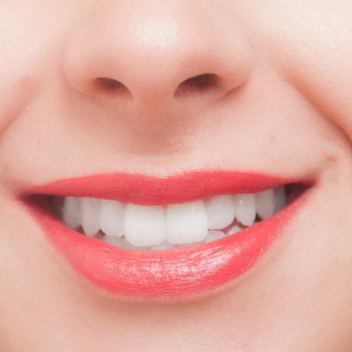 驚きの白さへ!歯にやさしいセルフホワイトニング