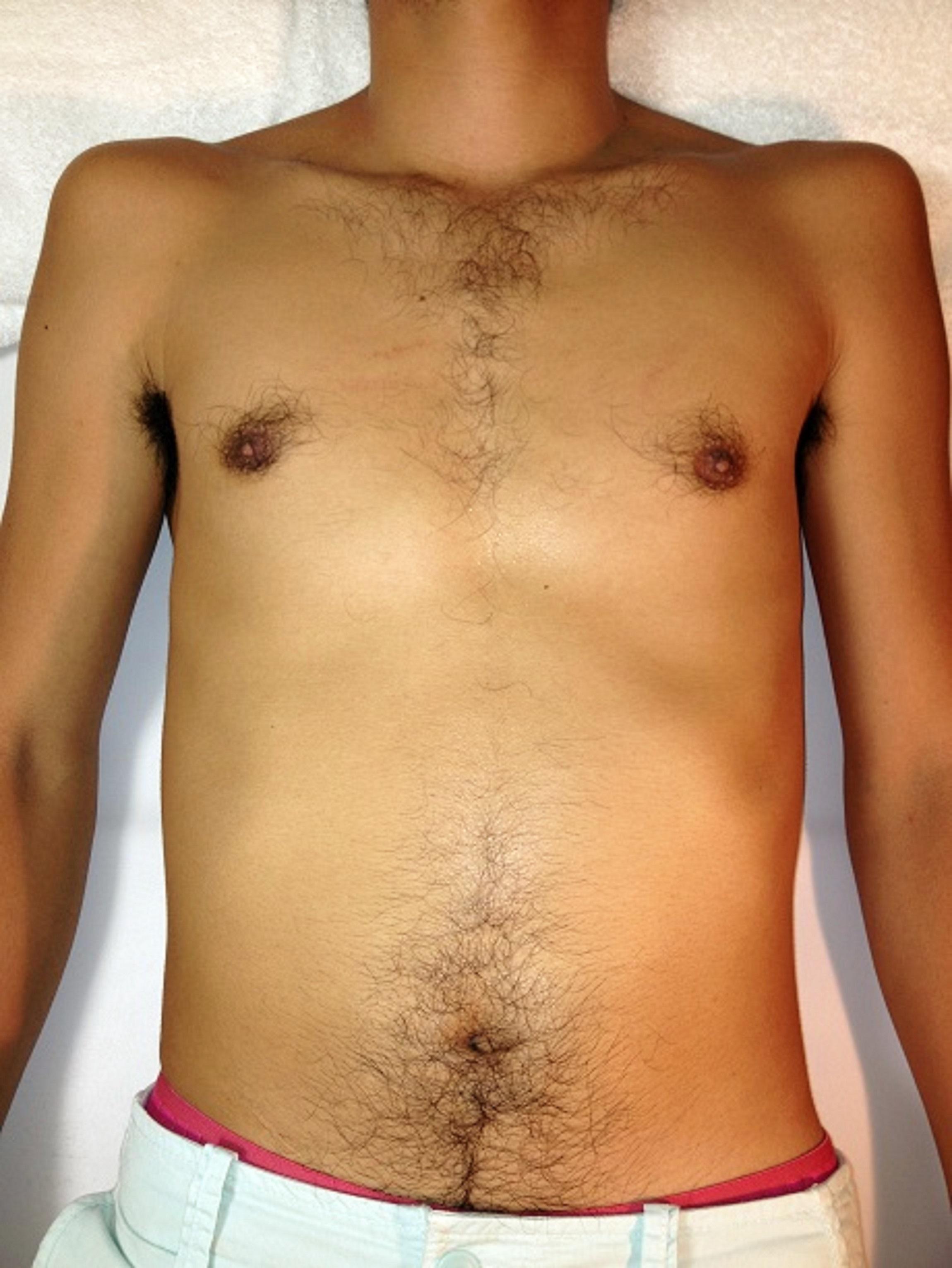 Men's hair loss Alonso (Alonso) Ebisu